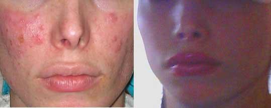 eczema cream prescription steroid
